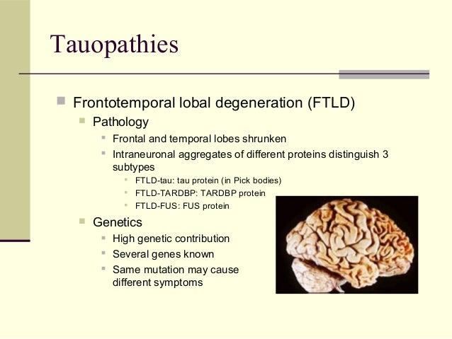 Tauopathies prevalence study