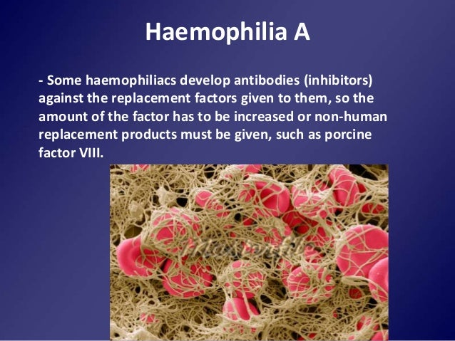 F8 haplotype and inhibitor risk: results from the ...