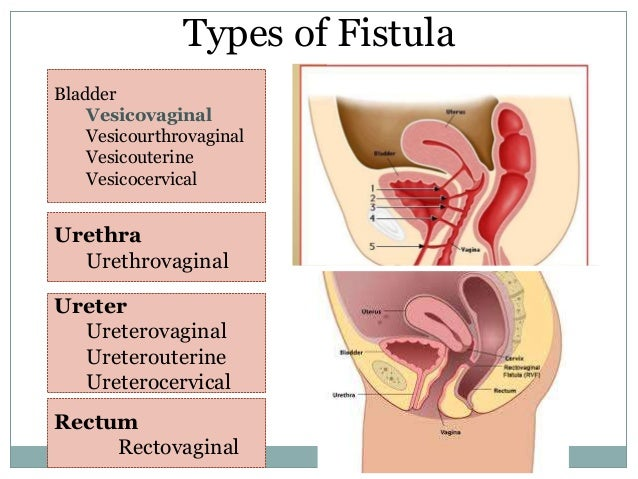Urethra vaginal fistula