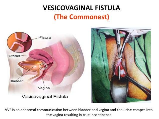 What are vaginal fistulas