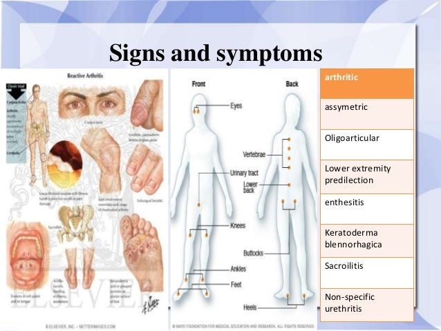 Signs and symptoms art...