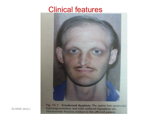 Mid facial dysplasia