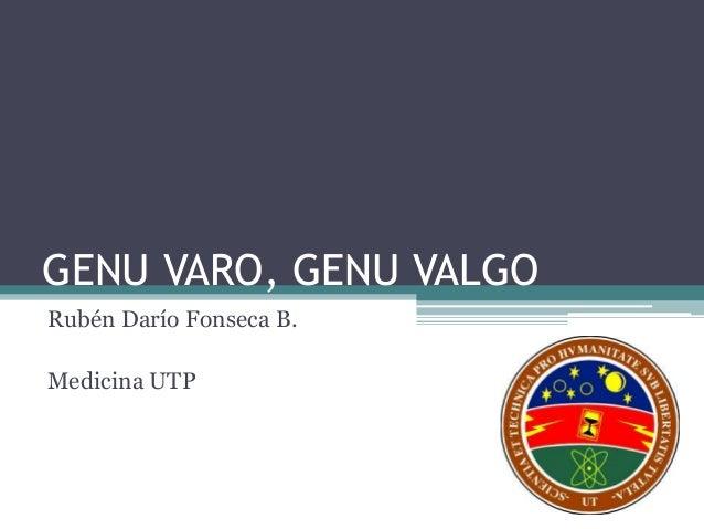 GENU VARO, GENU VALGO Rubén Darío Fonseca B. Medicina UTP