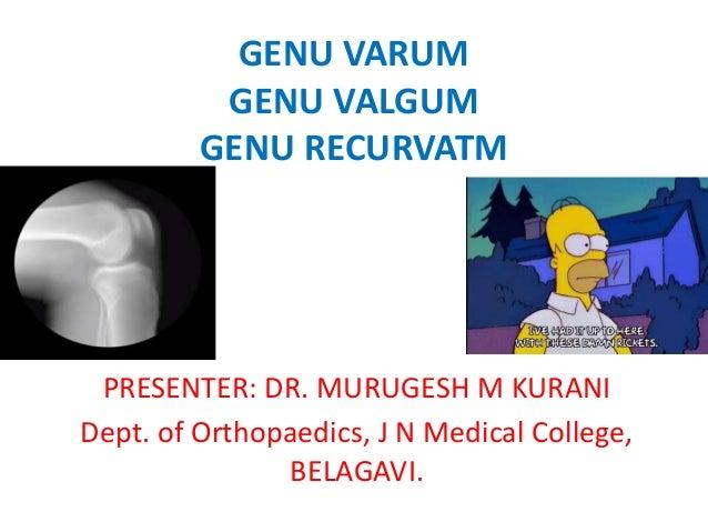 GENU VARUM GENU VALGUM GENU RECURVATM PRESENTER: DR. MURUGESH M KURANI Dept. of Orthopaedics, J N Medical College, BELAGAV...