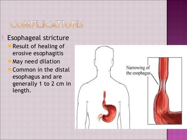 gastroesophageal reflux disease Detailed information on gastroesophageal reflux disease (gerd), including causes, symptoms, diagnosis, and treatment.