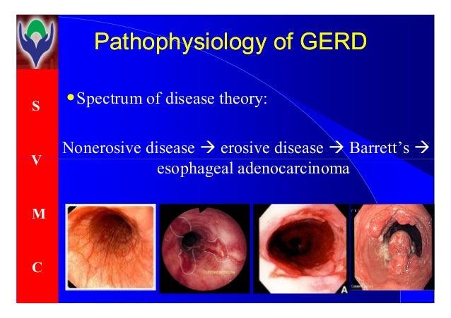 The hidden causes of heartburn and GERD