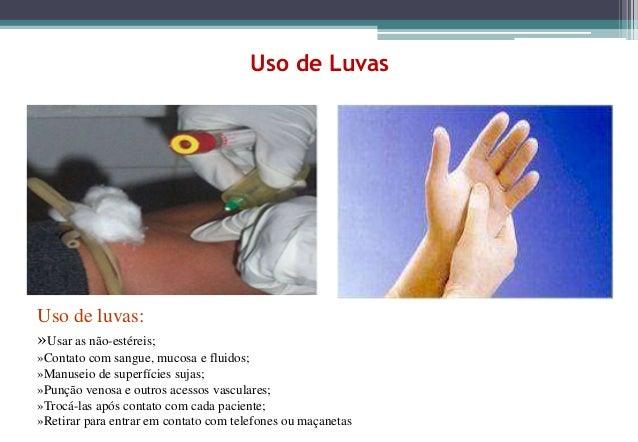 Uso de LuvasUso de luvas:»Usar as não-estéreis;»Contato com sangue, mucosa e fluidos;»Manuseio de superfícies sujas;»Punçã...