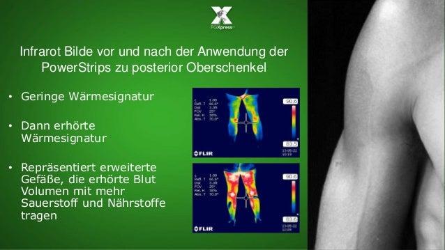 Infrarot Bilde vor und nach der Anwendung der PowerStrips zu posterior Oberschenkel • Geringe Wärmesignatur • Dann erhörte...