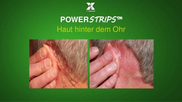 POWERSTRIPS™ Haut hinter dem Ohr