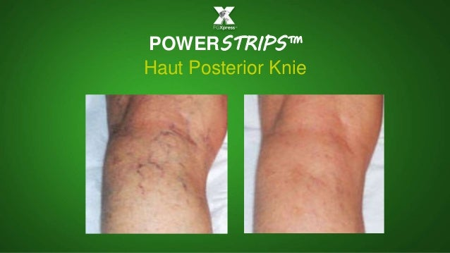 POWERSTRIPS™ Haut Posterior Knie