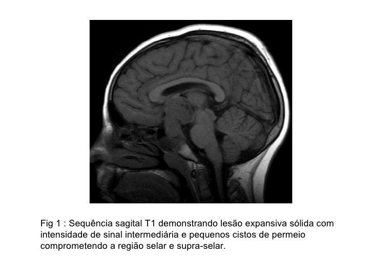 Fig 1 : Sequência sagital T1 demonstrando lesão expansiva sólida com intensidade de sinal intermediária e pequenos cistos ...