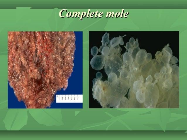 Complete moleComplete mole