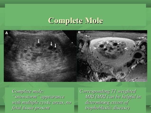 """Complete MoleComplete Mole Complete mole:Complete mole: """"snowstorm"""" appearance""""snowstorm"""" appearance with multiple cystic ..."""