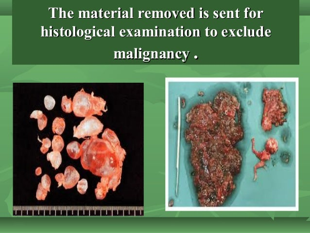 The material removed is sent forThe material removed is sent for histological examination to excludehistological examinati...