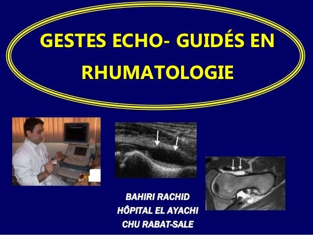 GESTES ECHO- GUIDÉS EN  RHUMATOLOGIE  BAHIRI RACHID  HÔPITAL EL AYACHI  CHU RABAT-SALE