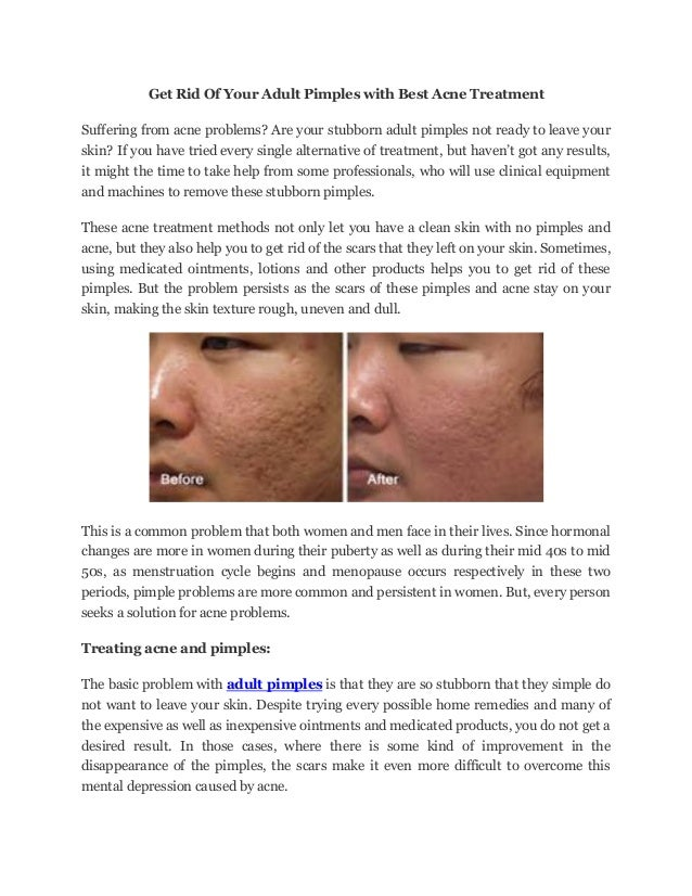 Alternative treatment for adult acne