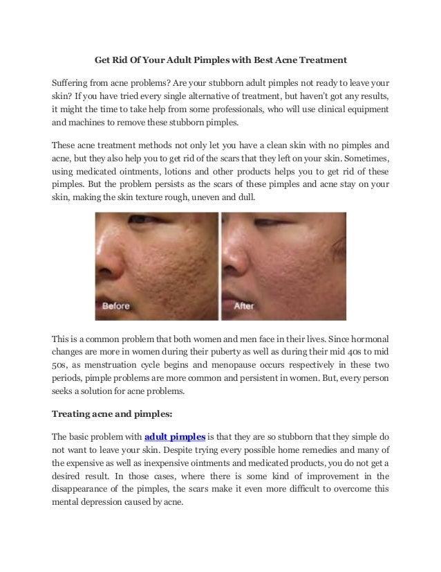 Alternative treatment for adult acne