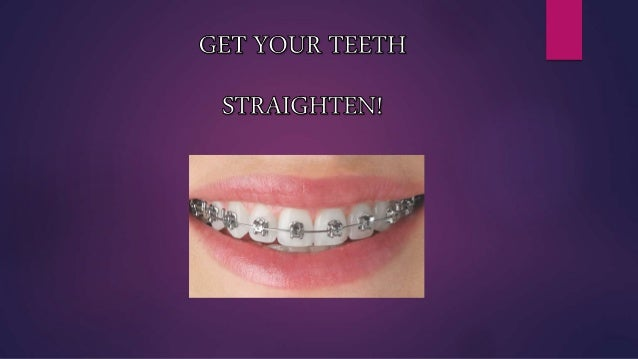 Braces are a collective term used for orthodontic treatment comprising of three components which are brackets and wire and...