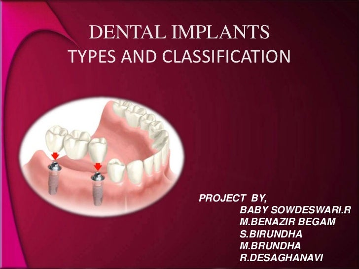 DENTAL IMPLANTSTYPES AND CLASSIFICATION<br />PROJECT  BY,<br />               BABY SOWDESWARI.R<br />               M.BENA...