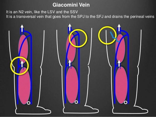 Giacomini varicose veins, hemodynamic patterns and strategy terapy