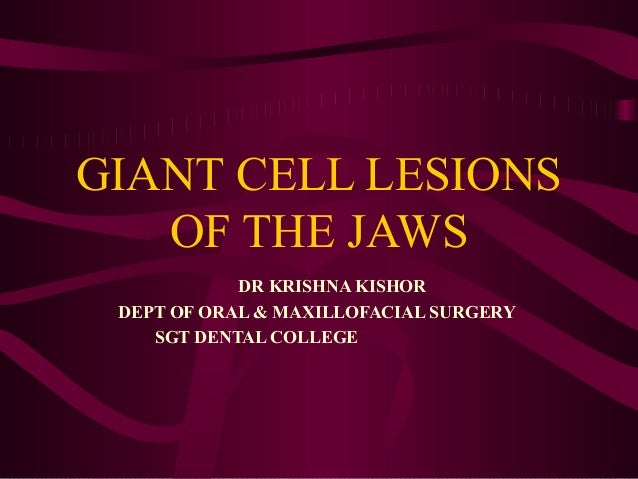 GIANT CELL LESIONS OF THE JAWS DR KRISHNA KISHOR DEPT OF ORAL & MAXILLOFACIAL SURGERY SGT DENTAL COLLEGE