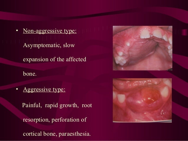 • Non-aggressive type: Asymptomatic, slow expansion of the affected bone. • Aggressive type: Painful, rapid growth, root r...