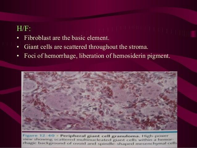 Differential diagnosis • CGCG • Pyogenic granuloma