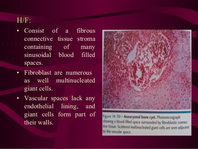 • Differencial diagnosis • CGCG • Hyperparathyroidism • Cherubism