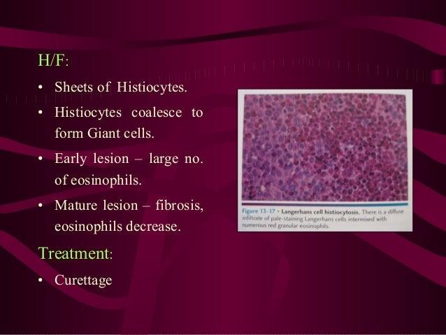 • Oral manifestations – earliest signs of diseases. • Stomatitis, Gingivitis, Halitosis • Loose teeth, premature exfoliati...