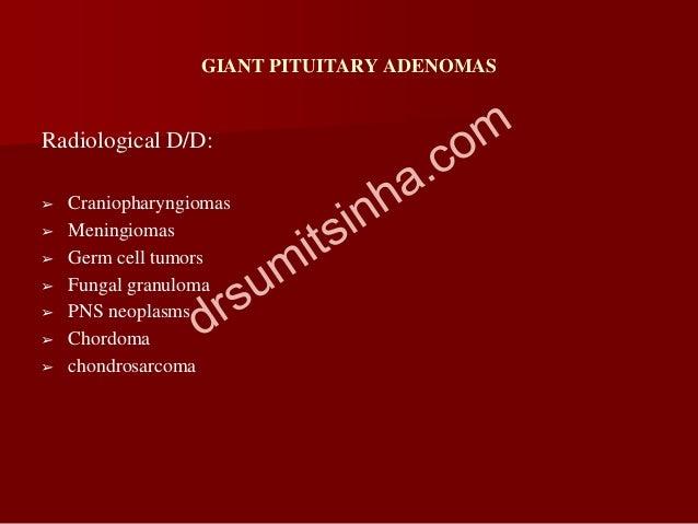 GIANT PITUITARY ADENOMAS Radiological D/D: ➢ Craniopharyngiomas ➢ Meningiomas ➢ Germ cell tumors ➢ Fungal granuloma ➢ PNS ...