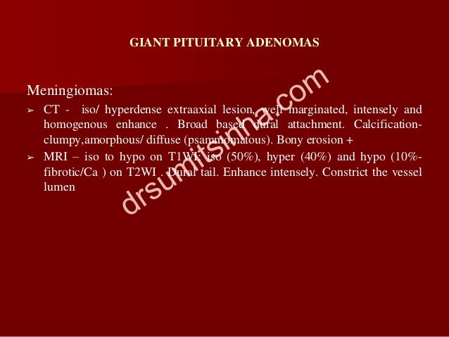 GIANT PITUITARY ADENOMAS Meningiomas: ➢ CT - iso/ hyperdense extraaxial lesion, well marginated, intensely and homogenous ...