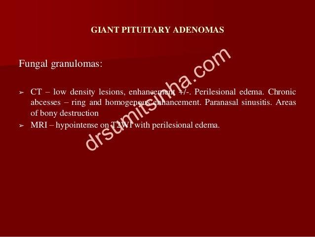 GIANT PITUITARY ADENOMAS Fungal granulomas: ➢ CT – low density lesions, enhancement +/-. Perilesional edema. Chronic abces...