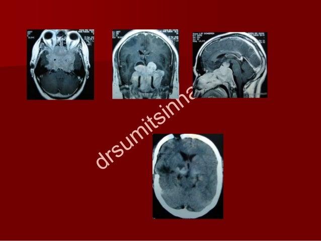 Giant pituitary adenomas.ppt