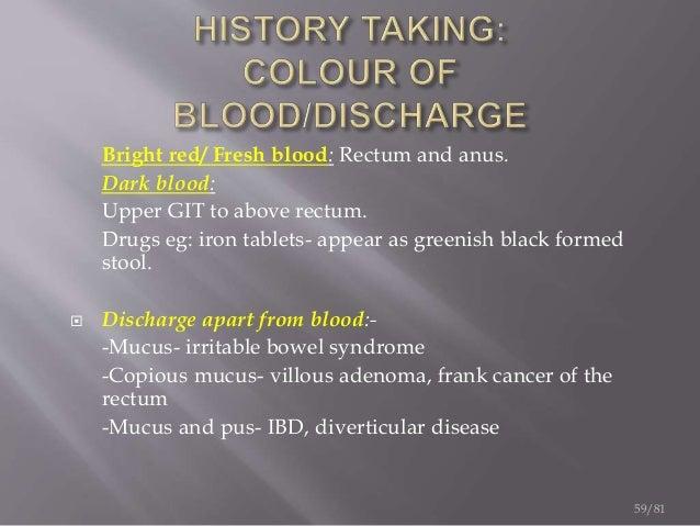 Gi Bleeding Presentation