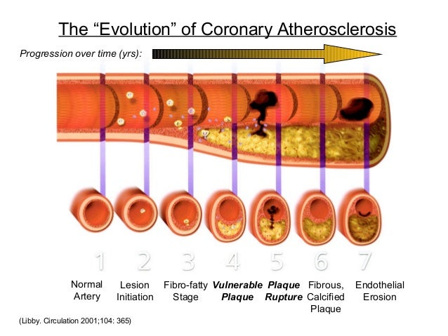 "The ""Evolution"" of Coronary Atherosclerosis (Libby. Circulation 2001;104: 365) Normal Artery Lesion Initiation Fibro-fatty..."