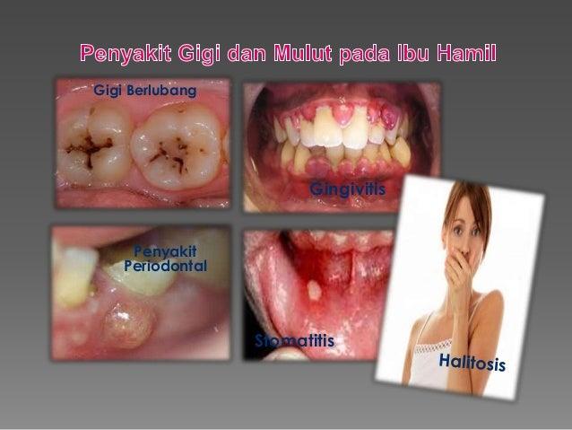 9 Cara Menghilangkan Rasa Pahit di Mulut dengan Mudah