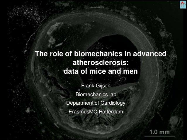 The role of biomechanics in advanced atherosclerosis: data of mice and men Frank Gijsen Biomechanics lab Department of Car...