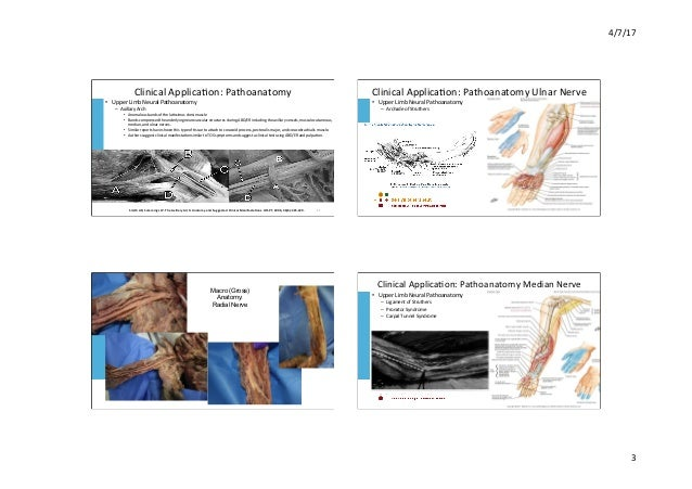 'Clinical Neurodynamics: clinical application from an anatomical perspective'  Slide 3
