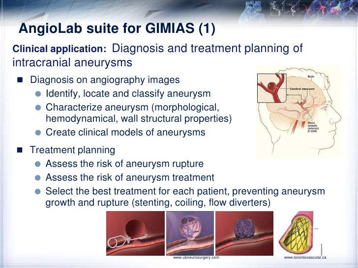 AngioLab suite for GIMIAS (1)<br />Clinicalapplication:  Diagnosis and treatment planning of intracranial aneurysms<br />D...
