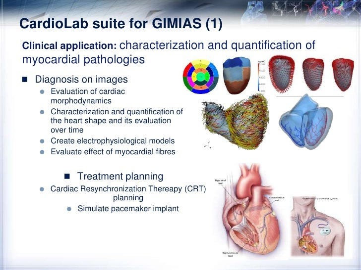 AngioLab suite for GIMIAS (2)<br />Intracranial aneurysm modeling: From medical images to risk descriptors<br />