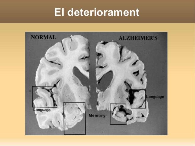 Alimenta el cervell  Consells alimentaris  Controla el pes.  Menja fruites, vegetals i cereals.  Evita els greixos satu...