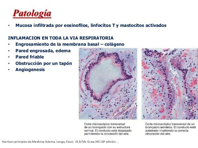 • Mucosa infiltrada por eosinofilos, linfocitos T y mastocitos activados INFLAMACION EN TODA LA VIA RESPIRATORIA • Engrosa...