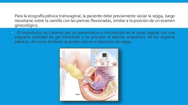 aparato reproductor femenino, historia clinica ginecologia y metodos de diagnostico