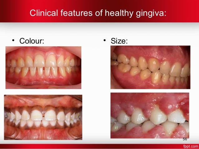 Gingiva In Health And Disease
