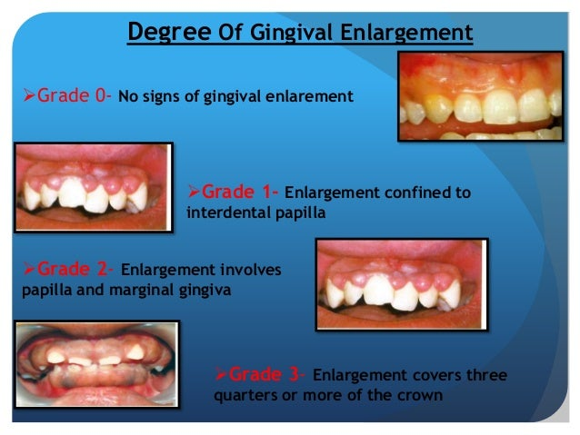 drug induced gingival enlargement pdf