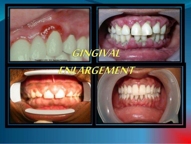 CONTENTS  INTRODUCTION -DEFINITION -CLASSIFICATION -GRADING  INFLAMMATORY GINGIVAL ENLARGEMENT  DRUG-INDUCED  IDIOPATH...