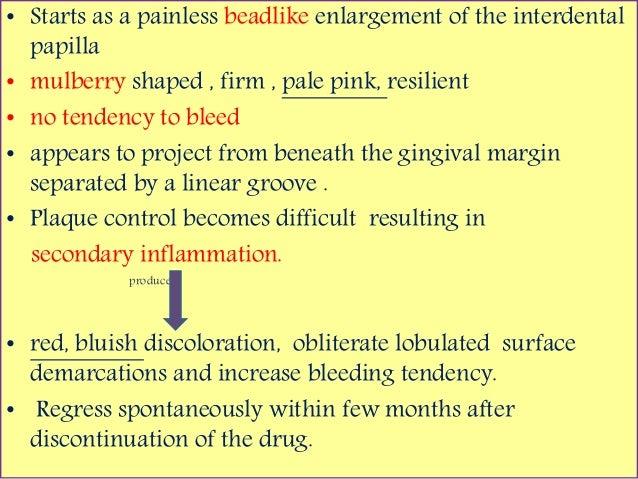drug induced gingival enlargement pdf