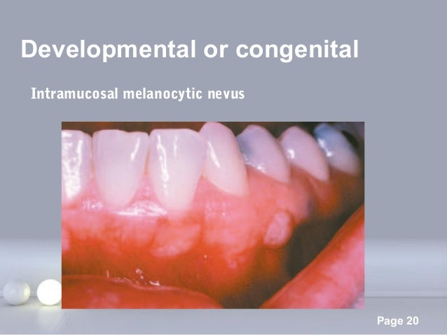 Powerpoint Templates Page 20 Developmental or congenital Intramucosal melanocytic nevus