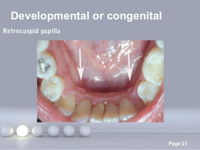 Powerpoint Templates Page 21 Developmental or congenital Retrocuspid papilla
