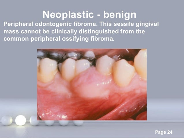 Powerpoint Templates Page 24 Neoplastic - benign Peripheral odontogenic fibroma. This sessile gingival mass cannot be clin...